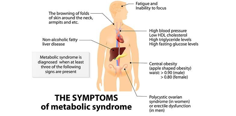 Liver Dysfunction and the Metabolic Syndrome