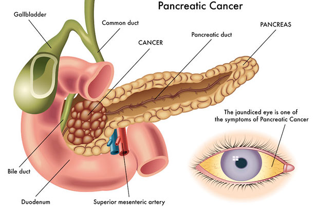 pancreas and pancreatic cancer men s health articles