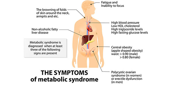 Liver Dysfunction and the Metabolic Syndrome Dallas Clouatre