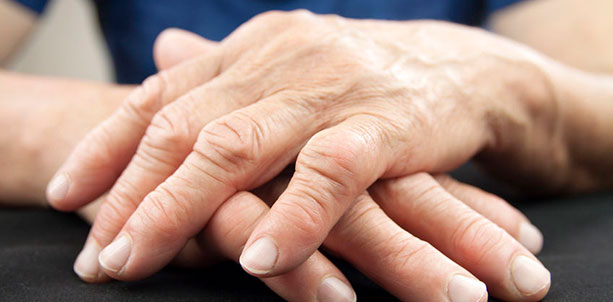 The Natural Treatment of Rheumatoid Arthritis