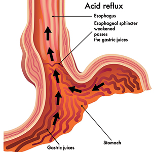 How Acid Reflux Works
