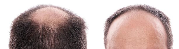 reducing hair loss hair growth