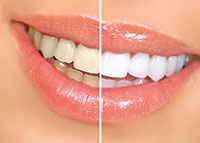 Steps to Whiter Teeth